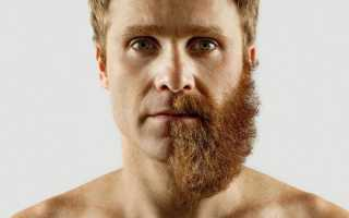 Неравномерно растет борода: причины и способы борьбы с неравномерным ростом бороды
